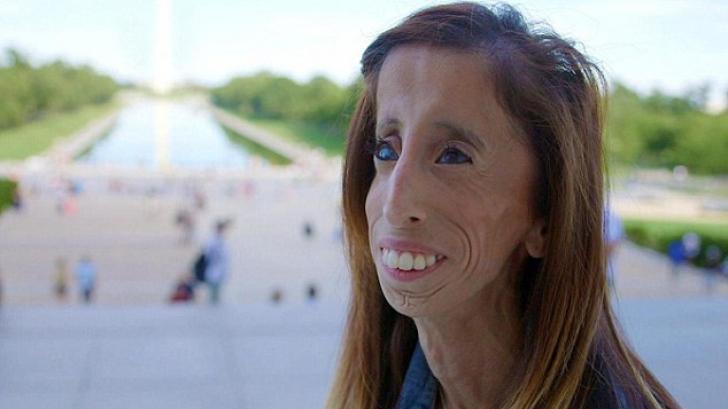 I s-a spus că e cea mai urâtă femeie din lume. Transformarea ei a servit o lecţie întregii lumi