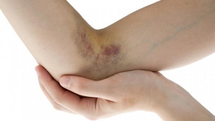 Medicii avertizează asupra unei boli autoimune care afectează mii de femei tinere şi copii