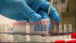Testări gratuite pentru depistarea infecției cu HIV și cu virusurile hepatice B și C