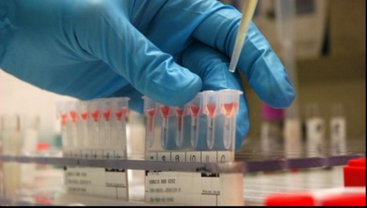 <p>Testări gratuite pentru depistarea infecției cu HIV și cu virusurile hepatice B și C</p>