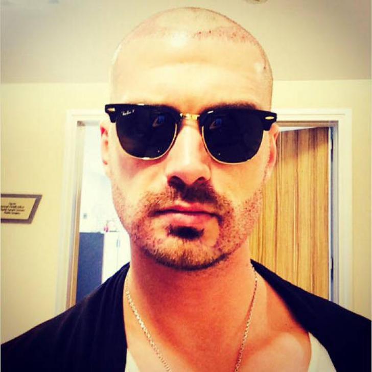 Cum arată Bogdan Vlădău după implantul de păr!