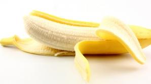 Și-a frecat dinții cu o coajă de banană. Este uimitor ce rezultat a obținut