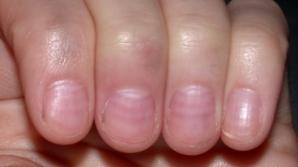 Dungile roşii şi mici care apar sub unghii pot semnala o problemă gravă de sănătate