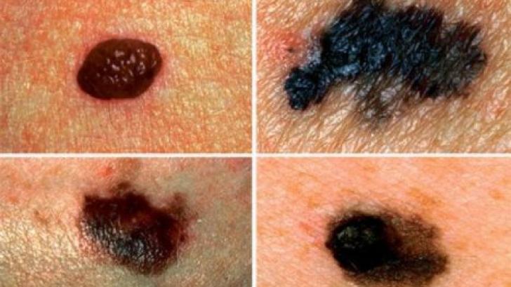 Semne de alarmă care arată că o aluniță s-a tranformat în cancer