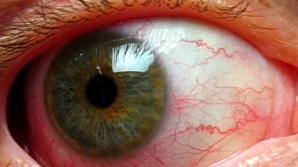 Ochiul roşu poate trăda probleme grave de sănătate. 4 situaţii în care trebuie să te îngrijorezi