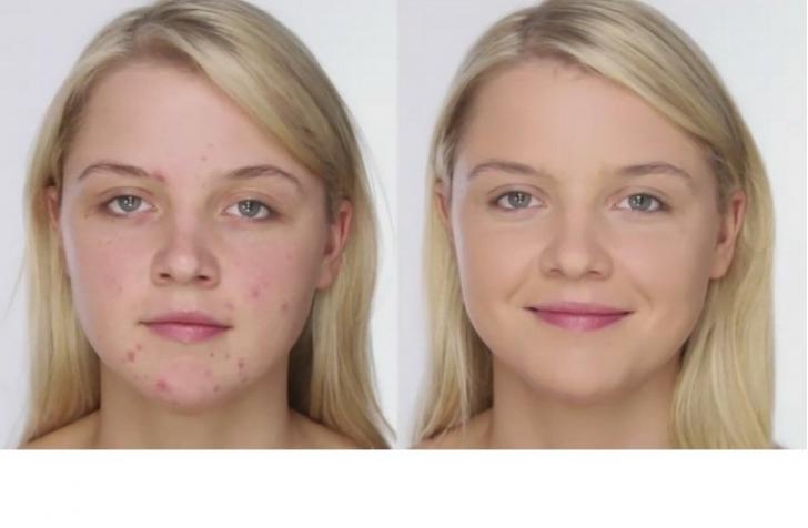 Cum să acoperi acneea şi petele roşii de pe faţă cu ajutorul machiajului