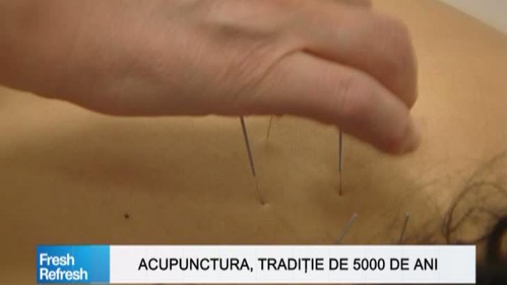 Fresh Refresh. Acupunctura, tradiţie veche de 5000 de ani