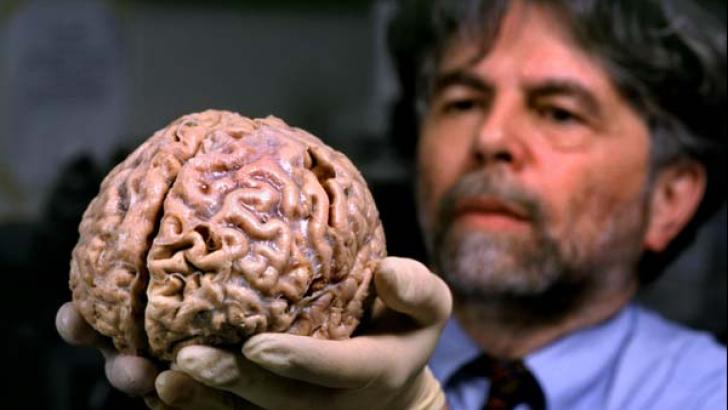 Creierul uman îmbătrâneşte cu opt ani după un accident vascular cerebral