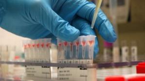 """Românii se pot testa gratuit pentru virusurile HIV, hepatice B și C, în cadrul unei campanii lansate miercuri de Institutul Național de Boli Infecțioase """"Prof.Dr. Matei Balș"""""""