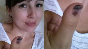Cum poate arăta cancerul de piele. O poză devenită virală îți poate salva viața!
