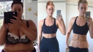 A reuşit să slăbeasca peste 85 de kilograme în 11 luni