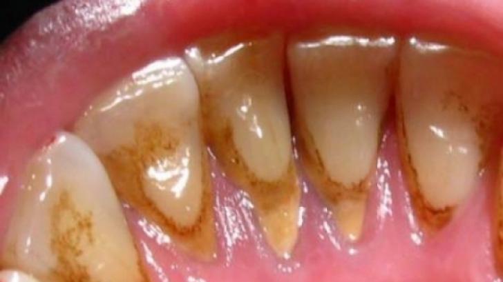 Cum scapi de tartru fără să mergi la stomatolog