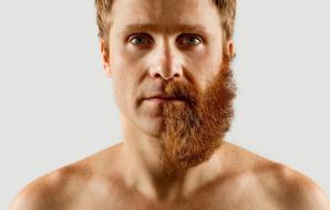 Halucinant! Şi-a ras jumătate din barbă, apoi a fost în stare să-şi facă asta la faţă. Şi nu e tot! / Foto: boredpanda.com