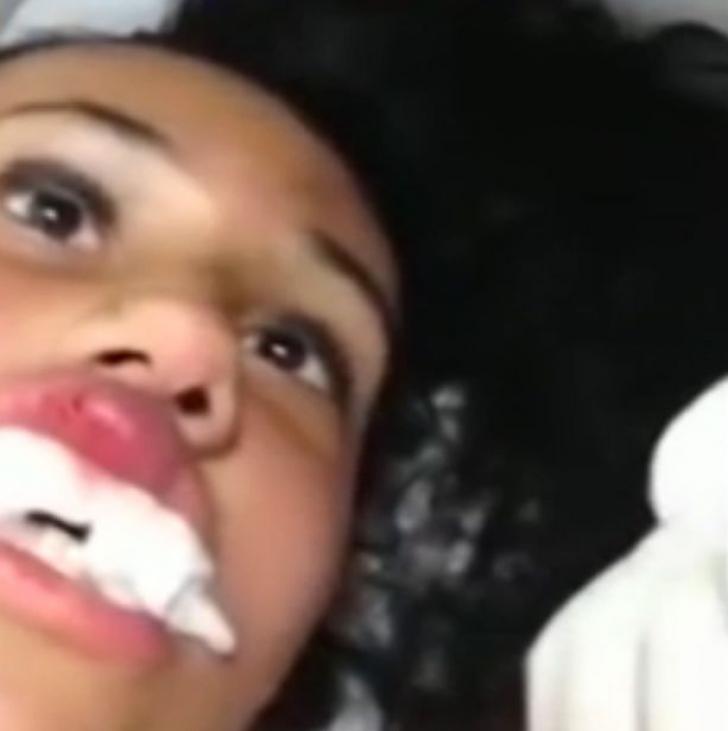 Credeau că are botox în buze, dar când s-au uitat mai atenți au rămas şocaţi