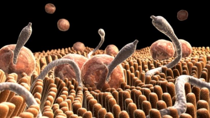 infestarea cu paraziţi intestinali înseamnă)