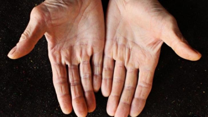 Descuamarea pielii degetelor la copii