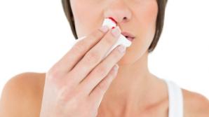 Sângerările nazale pot indica probleme de sănătate grave. Nu le ignora!