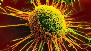 <p>Un test simplu şi ieftin poate depista din timp cancerul pancreatic</p>