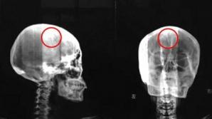 Şocant. Ce au găsit medicii în creierul unei femei care se plângea des de migrene