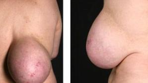 Povestea emoţionantă a femeii cu un sân pe spate. Medicii s-au îngrozit când au văzut-o