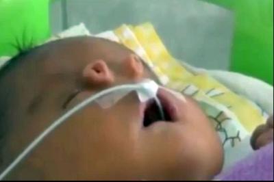 Cum arată bebelușul care s-a născut cu două nasuri? Medicii au rămas șocați