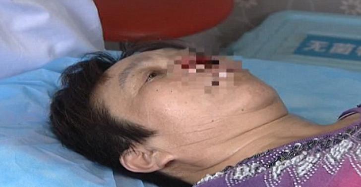 Fostul soț a mușcat-o de nas, apoi i l-a mâncat. Motivul bărbatului este uluitor