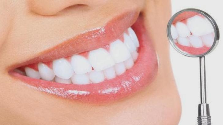 Cea mai periculoasă bacterie din gura noastră. Cum ne ferim de ea