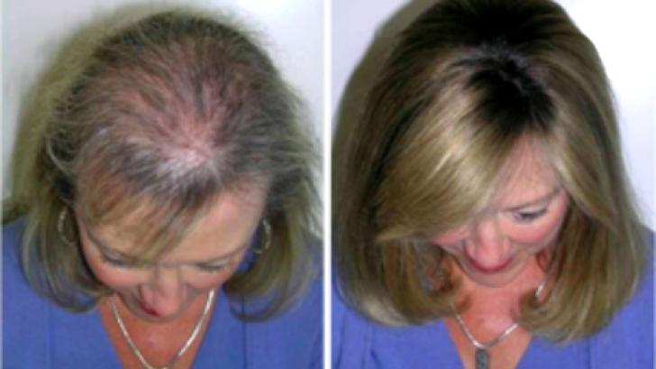 E nevoie de un singur ingredient ca să opreşti căderea părului. Firele vor creşte din nou