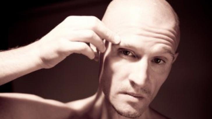 9 mituri despre căderea părului la bărbaţi