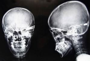 Un rapper a fost împușcat în cap cu o mitralieră kalașnikov. Totul a fost filmat