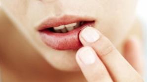 Ai buzele crăpate? Ce problemă de sănătate indică