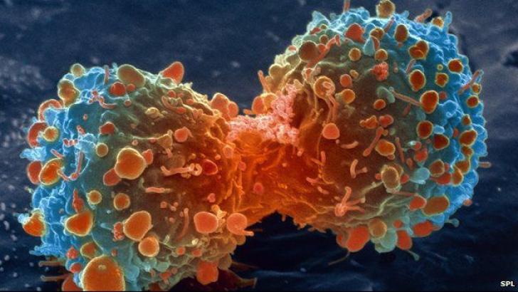 <p>Motivul pentru care antioxidatii trebuie evitati de persoanele bolnave de cancer</p>