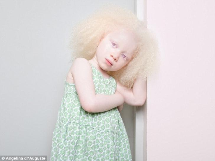GALERIE FOTO. Imagini uimitoare cu persoane care suferă de albinism. Rămâi fără cuvinte