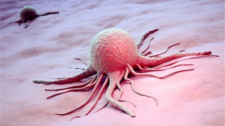 Remediul miraculos care te ajută să lupți cu cancerul. Cum se prepară