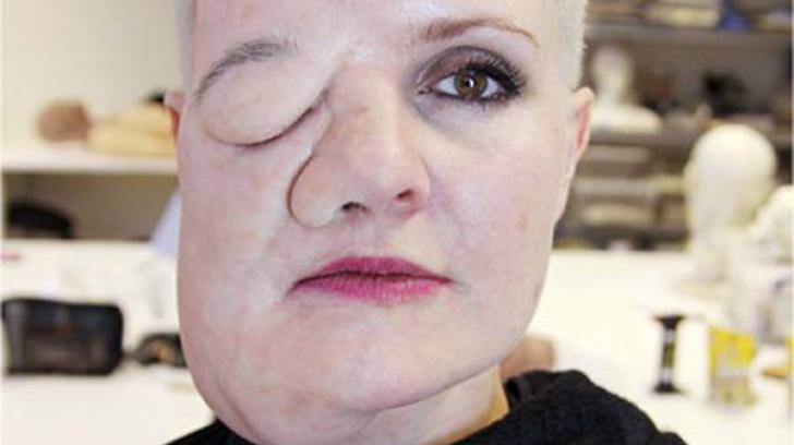 Vede o tumoră pe faţă când se uită în oglindă, dar aceasta nu există. Ce a păţit, de fapt, femeia