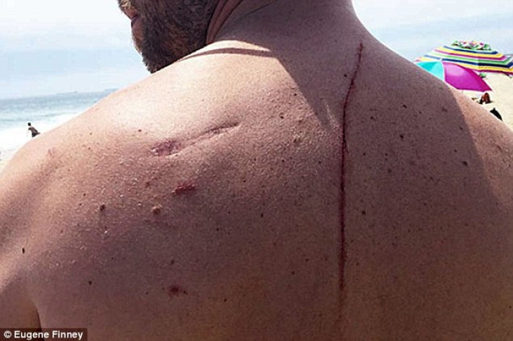 """Povestea emoţionantă a unui bărbat atacat de un rechin. """"Mi-a salvat viaţa"""""""
