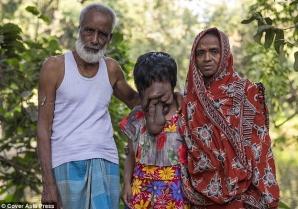 """Povestea cutremurătoare a tinerei fără faţă: nici nu ştie dacă are ochi şi nas. """"Sunt fericită aşa!"""" / Foto: Daily Mail"""