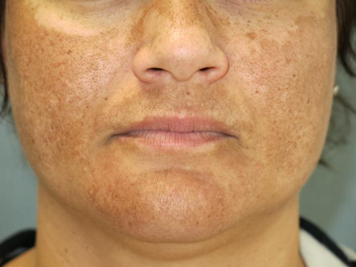 Exclusiv! Cum tratezi Melasma, plăcile pigmentare de pe față