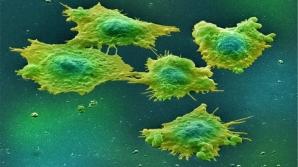 S-a descoperit: alimentul acesta provoacă patru tipuri de cancer. Renunţi la el?
