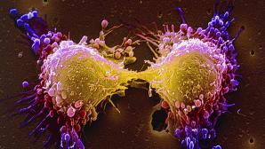 4 lingurițe din acest amestec vindecă cancerul
