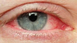 """Simptomele unei boli grave apar la ochi. Ce se întâmplă când vezi """"în ceaţă"""""""