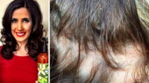 Şi-au pierdut părul din cauza unui şampon intens promovat