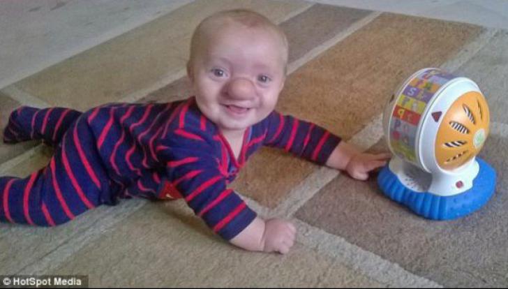 Pinocchio există și are 2 ani. Povestea bebelușului născut cu creierul în... nas. Cum arată micuțul