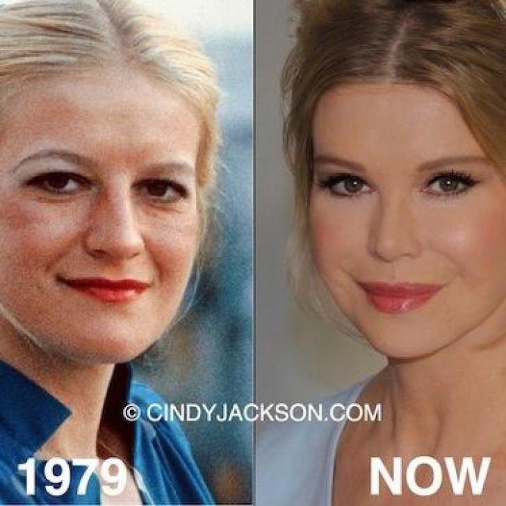 <p>Asa arata femeia cu cele mai multe operatii estetice! Cum arata înainte</p>