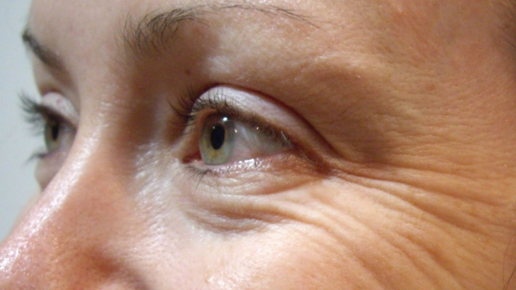Obiceiul care îmbătrânește pielea cu câțiva ani. Multe femei fac această greșeală