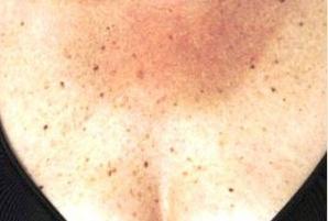 Ai observat că ai aceste pete pe piele? Iată de ce boală ai putea suferi