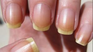 5 lucruri pe care unghiile le spun despre sănătatea ta