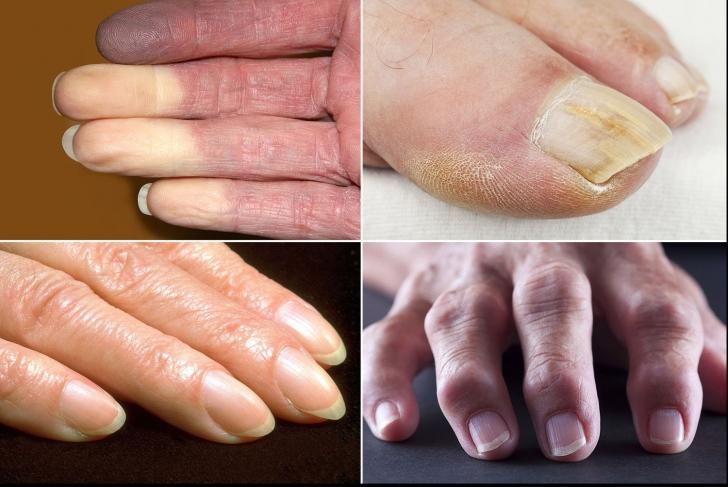 12 probleme de sănătate pe care ți le dezvăluie mâiniile și unghiile. Cum le identifici