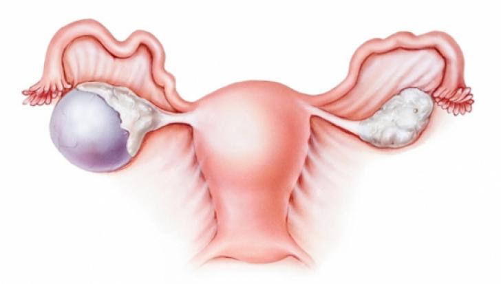 Cauza nebănuită a cancerului ovarian. Multe femei se îmbolnăvesc din cauza acestui produs