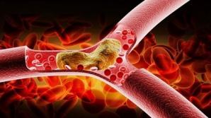 Cum îţi aduci colesterolul la nivel normal după Paşte. Este cea mai simplă metodă